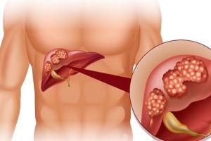 Sỏi đường mật trong gan (sỏi gan)