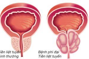 Sỏi tiết niệu do phì đại tuyến tiền liệt ở nam giới