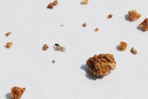 Sỏi Canxi Oxalat – Những Điều Bạn Cần Biết