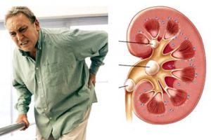 Triệu chứng đau do sỏi thận