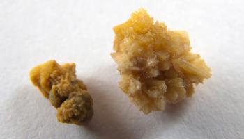 Tăng acid uric và nguy cơ sỏi urat