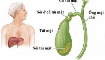 Bệnh sỏi mật và cách điều trị